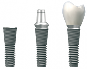 Implants, dentures, crown and bridge - Dental Implants