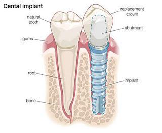 dental implant parts diagram | Diarra
